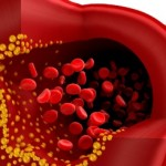 Lipid may Prevent Heart Disease by Softening Arteries