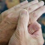 What Do You Need to Know about Living with Arthritis?