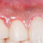 Is Gum Disease Linked To Rheumatoid Arthritis?