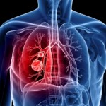 Lung Cancer: Can You Get It Without Smoking?