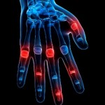 How to Reduce Your Risks of Rheumatoid Arthritis