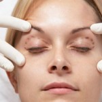 Can You Have a Facelift Without Surgery?