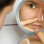 How Can Probiotics Help with Curing Acne?