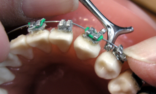 Orthodonics The Dos and Don'ts of Wearing Braces