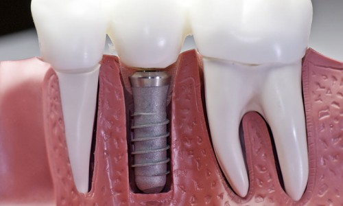 5 Things You Must Know to Avoid Needing Dental Implants