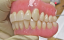 Denture Detail How to Help First Time Seniors Get it Right