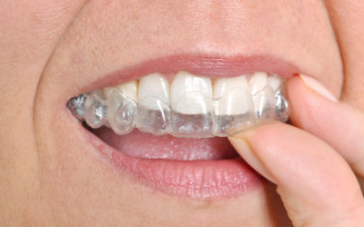 Breaking Down Braces Options for Adults